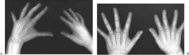 brachydactyly cosmetic surgery - carpal tunnel syndrome, Skeleton