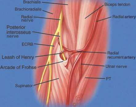 Radial Nerve Injury - Carpal Tunnel Syndrome - 78 Steps Health Journal