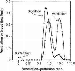 Ventilation Perfusion Ratio Emphysema